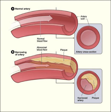 Cholesterol effects: narrowing of artery.